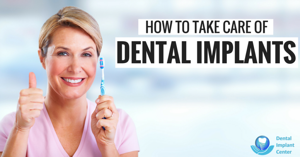 How to take care of dental implants