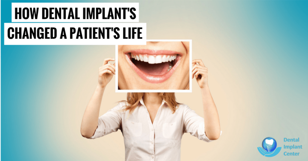 How Dental Implants Changed a Patient's Life