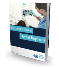 The Complete Guide to Dental Implants