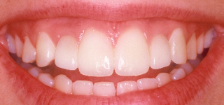 What Are Dental Implants and How Do They Work