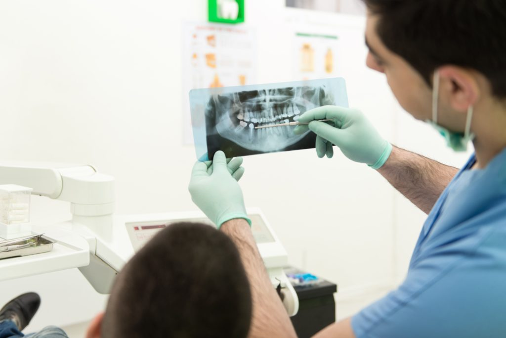 The Two Extremely Important Reasons Why You Need Another X-Ray for Dental Implants
