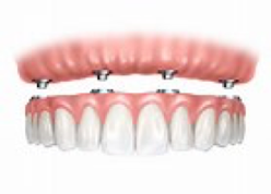 Mini Implants Compared to Traditional Dental Implants