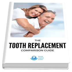 The Tooth Replacement Comparison Guide-min